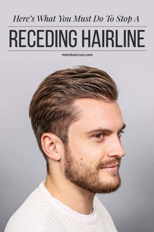 Heres What You Must Do To Stop A Receding Hairline