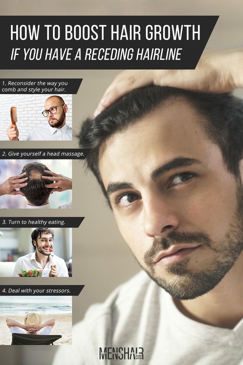 Here's What You Must Do To Stop A Receding Hairline