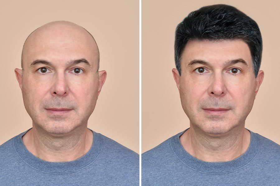 Should You Have A Hair Transplant? #hairtranspalnt #thinhair