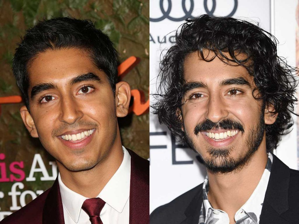 Dev Patel #facialhair #beard #beardtranformation