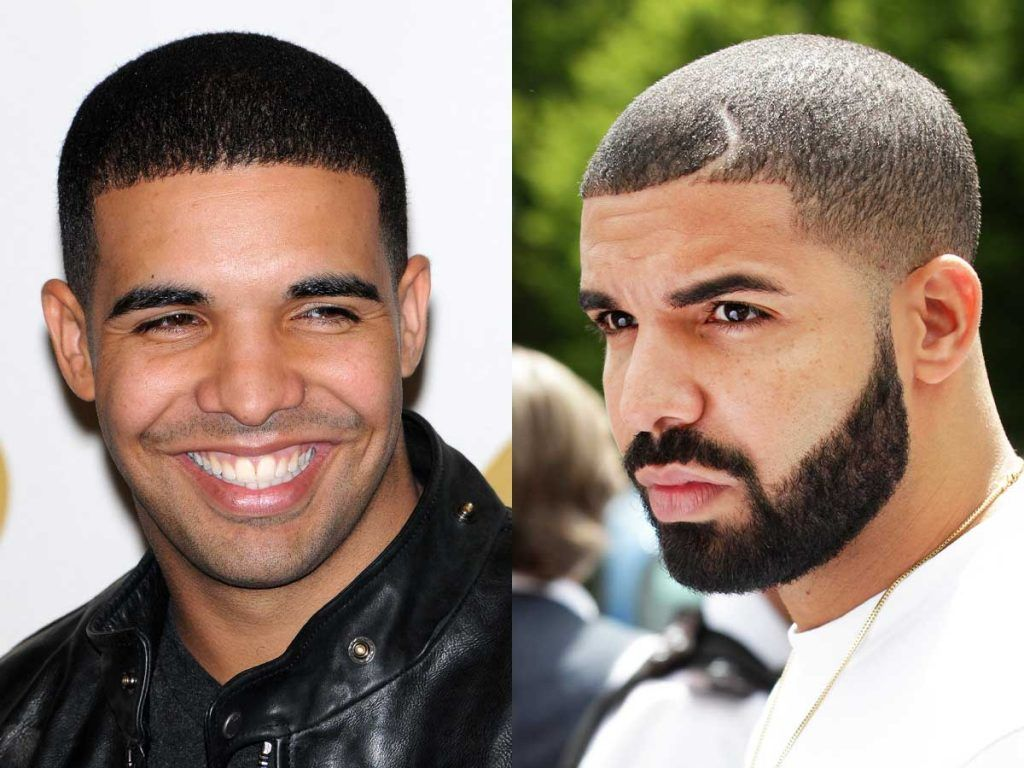 Drake #drake #facialhair #beard #beardtranformation