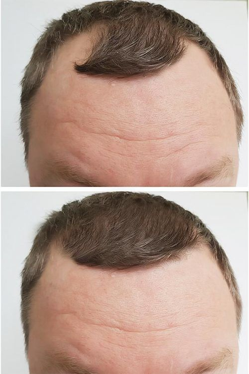 Is A Hair Transplant Effective? #hairtransplant