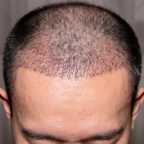 How Do I Recover From A Hair Transplant Procedure? #hairtransplant