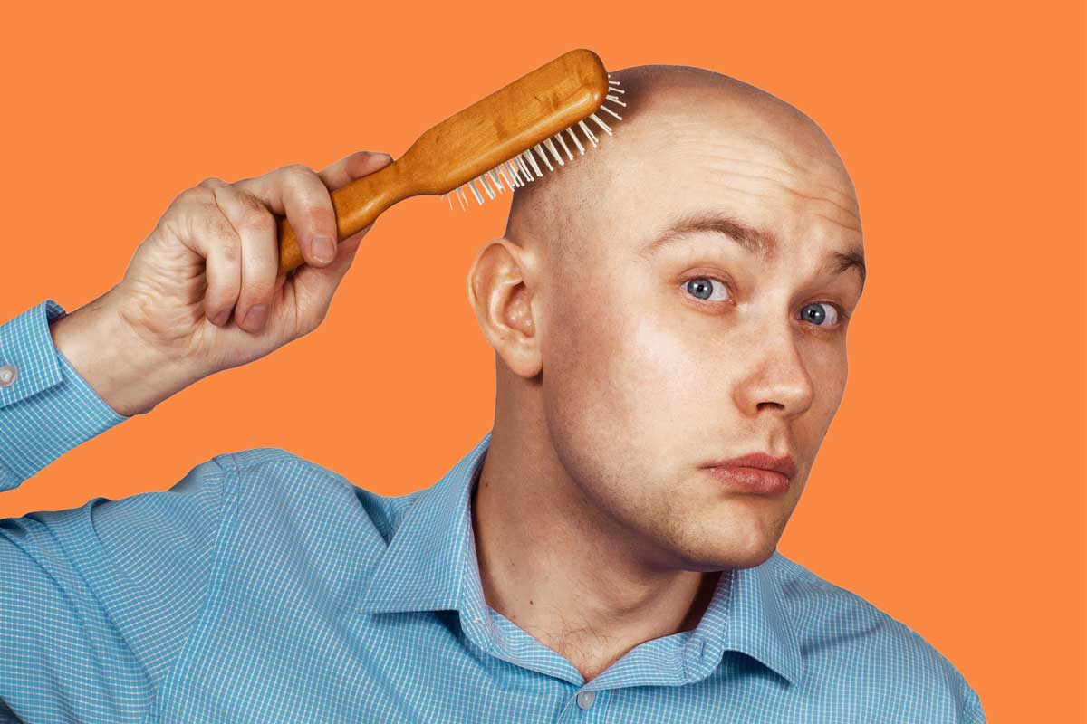 All FAQs You Might Have About A Hair Transplant Are Answered Here